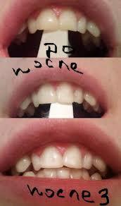 Зубы до и после применения масла чайного дерева