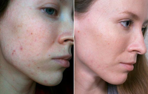 фото кожи лица до и после акне