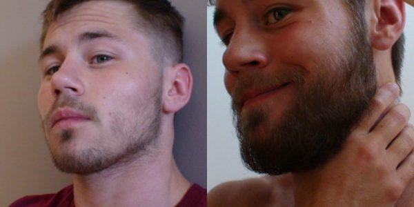 Мужчина до и после использования касторки для роста бороды