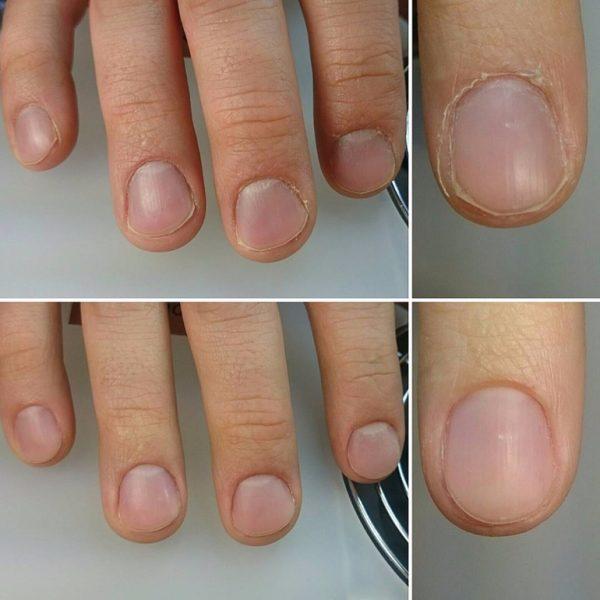 Ногти до и после