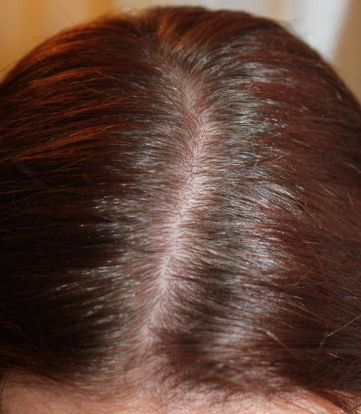 Здоровая кожа головы