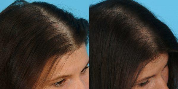Фото до и после применения