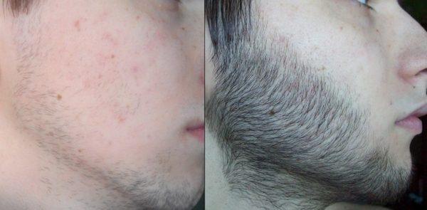 Репейное масло для роста бороды: до и после