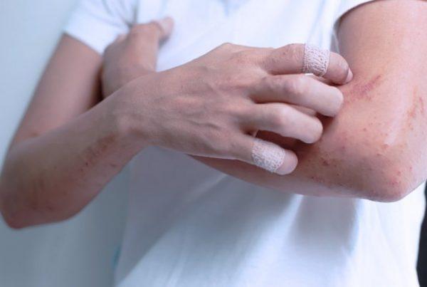 Человек чешет руку с экземой