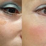 Пигментные пятна: фото до и после
