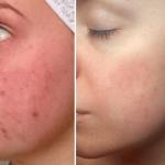 Прыщи: фото до и после