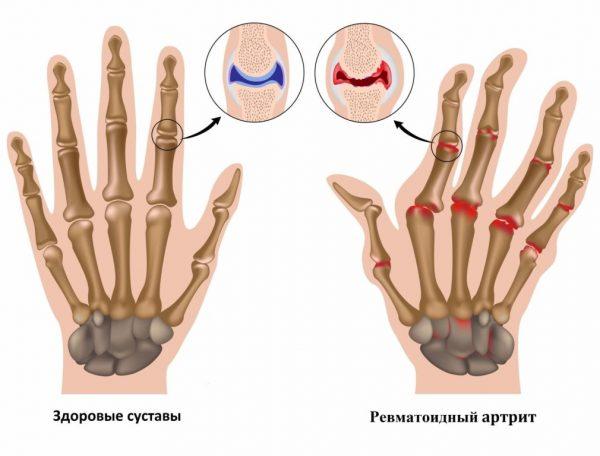 Отличие здоровых суставов и суставов, пораженных артритом