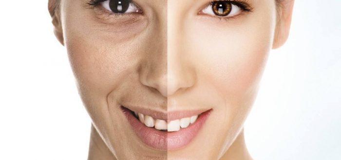 Фото до и после - улучшение качества кожи