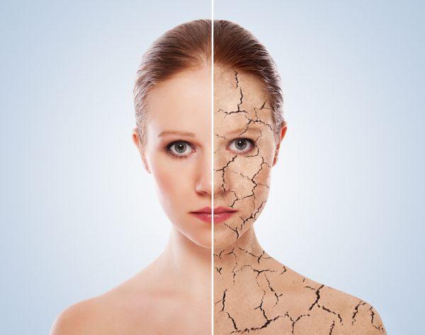 Слева — здоровая кожа, справа — кожа, поражённая болезнью